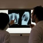 フランスと日本の医者の違い?咳喘息とアレルギー性咳の違いって何?