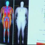 「体脂肪率45%の女性の体」ダイエットの常識 in フランス(3)